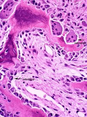 Micrograph of osteoclast. Note multinucleated gian