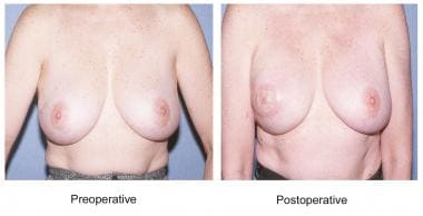 Latissimus dorsi breast reconstruction.