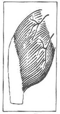 Type III, vascular patterns of the muscle and musc
