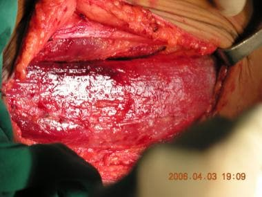 The gracilis muscle dissected; the proximal half i