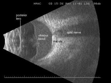 Horizontal macula scan in an eye with a vitreous h