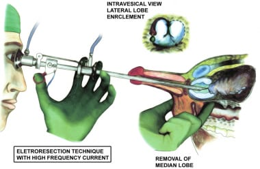 The Iglesias resectoscope used for the median lobe
