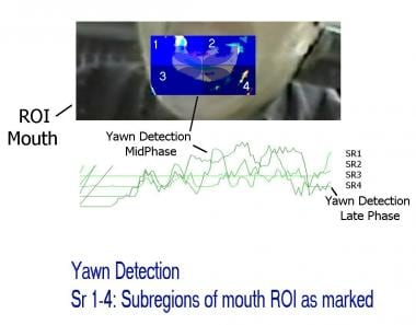 Physiologic yawn. Mouth region of interest (ROI).