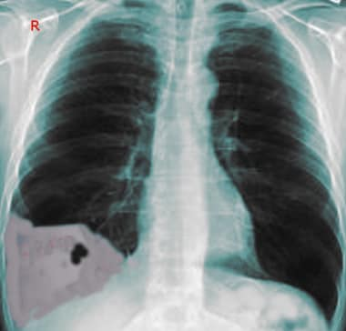 A 23-year-old man with a stab to the right chest p