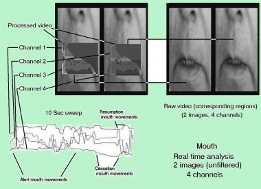 Multichannel correlation of mouth region configura