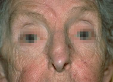 Case 7. Postoperative result at 1 year after recon