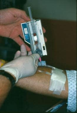 Compartment pressure measurement.