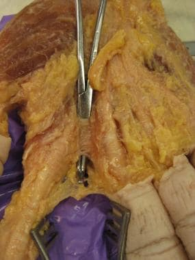 Here, the deep transverse metacarpal ligament is h