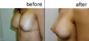 Breast augmentation, subglandular. This patient ha