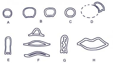 Cross-sectional shapes of the trachea. A: Juvenile
