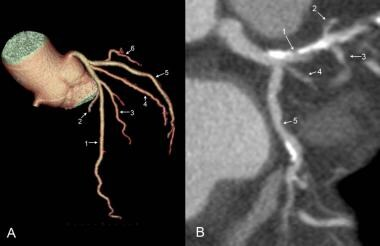 Left coronary arteries: Volume-rendered (A) and mu