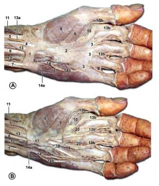 Palmar structures of the left hand. In A, the palm