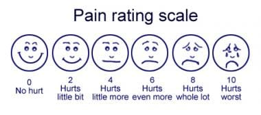 Faces Pain Rating Scale.