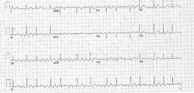 Typical counterclockwise atrial flutter (most comm