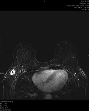MRI: A, Non-fat saturation T1 weighted image showi