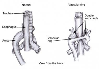 Double aortic arch causing vascular ring.