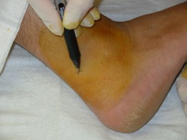Mark the site adjacent to the Achilles tendon.
