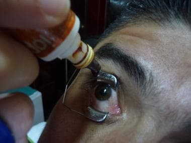 After a subconjunctival injection of lidocaine 1%