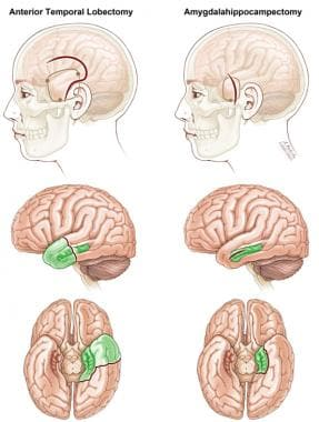 Comparison of anterior temporal lobectomy and sele