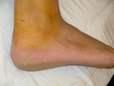 Marked site adjacent to the Achilles tendon.