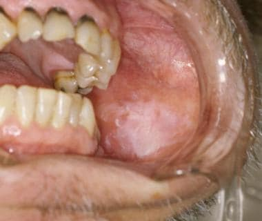The lesion is an example of leukoplakia.