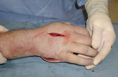Single dorsal incision was made to gain access to
