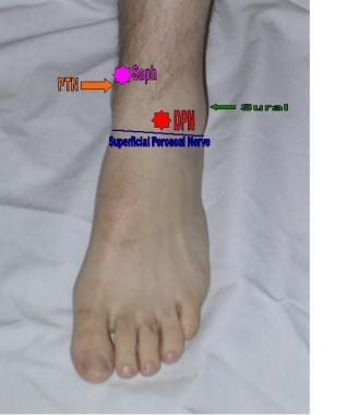 Areas of anesthetization to complete an ankle bloc
