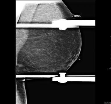Spot compression MLO view showing two masses in th