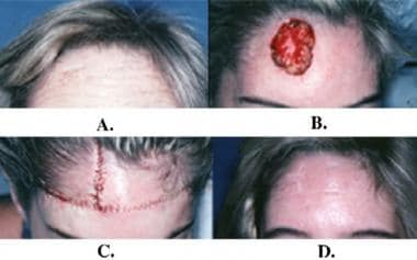 Rotation flaps. A: Large basal cell carcinoma of t