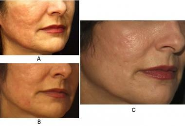Atrophic acne scars before full-face carbon dioxid