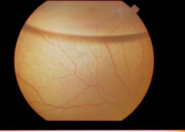 Patient with a rhegmatogenous retinal detachment s