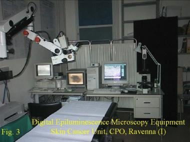 Digital epiluminescence microscopy equipment, Skin