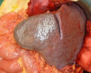 Severe (massive) splenomegaly occupying most of le