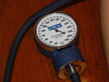 Aneroid sphygmomanometer at level of systolic bloo