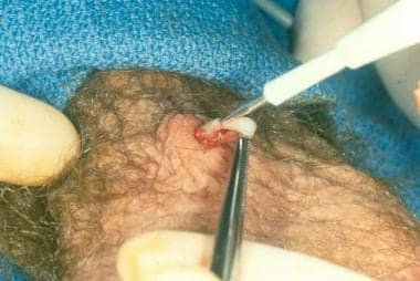 Intraluminal cautery.