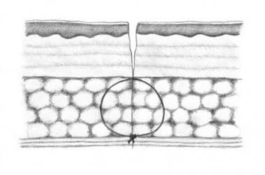Deep absorbable stitches should be placed so that