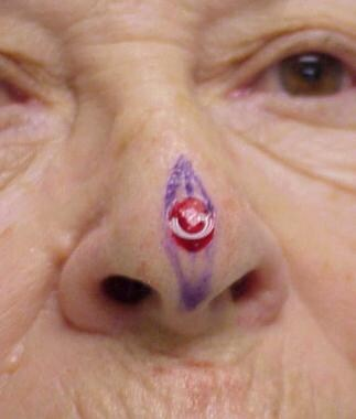 A central nasal defect of approximately 1 cm. Note