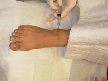 Anesthetize along the line from lateral to medial