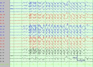 Interictal generalized spike-wave complexes (idiop
