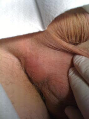 Scrotal abscess.