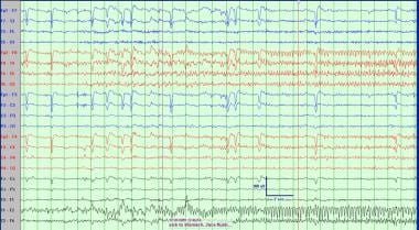 Ictal EEG recording of right temporal lobe epileps