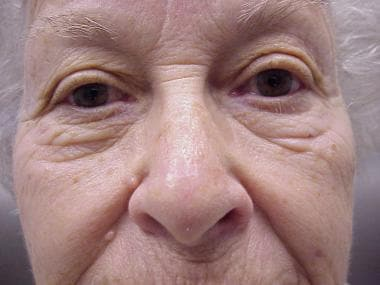 Linear closure on the nose 8 weeks postoperatively