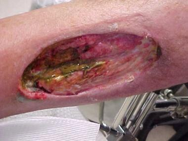 Chronic ulcer of medial aspect of right leg due to