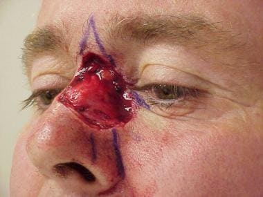Complex skin and soft tissue defect on the nasal d