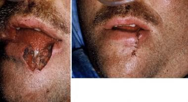 An M-plasty was performed at the apex to shorten t