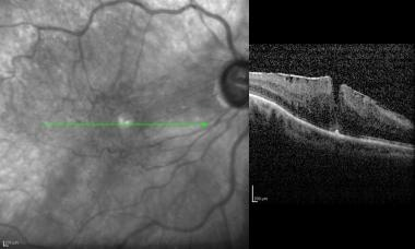 Epimacular membrane. Following pneumatic retinopex