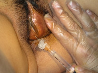 Mucosal infiltration with lidocaine.