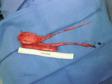 Radial forearm free flap harvested with vascular p