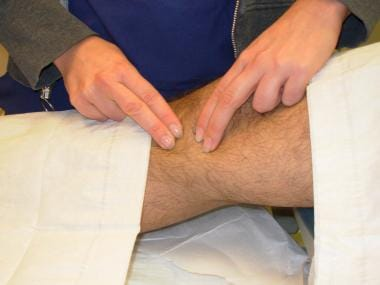 Identify the landmarks: medial femoral and tibial