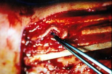 Harvesting the radial forearm flap in the subfasci